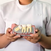 Signs Of Impacted Wisdom Tooth
