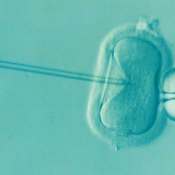 IVF Twins – Is Conceiving Possible?