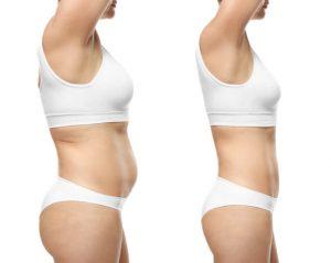 flat stomach surgery