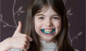 a little girl using an orthodontic apparatus to fix overbite